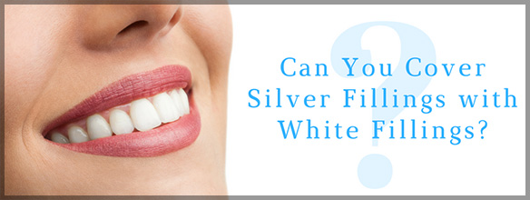 Can You Cover Silver Fillings With White Fillings?