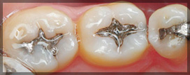 Three Teeth With Silver Fillings