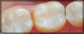 Three Teeth With White Fillings