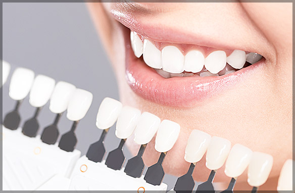Why Professional Teeth Whitening is Worth It