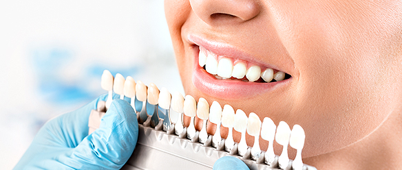 Whitening Your Teeth