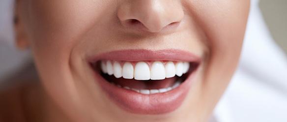 Gum Contouring Surgery