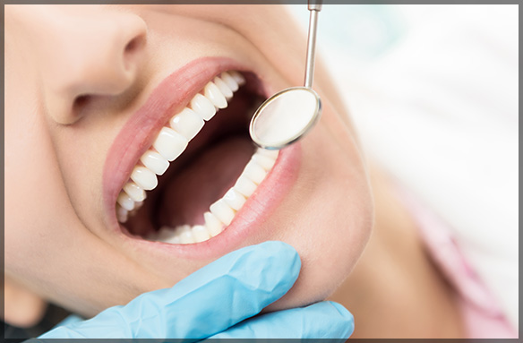Gum Lift Cosmetic Dentistry Procedure